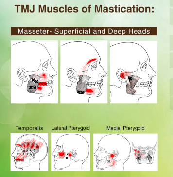 Jaw muscles that are involved in TMJ pain