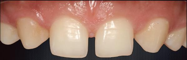 Management of Multiple Anterior Diastema with Composites – Use of Illusion cover