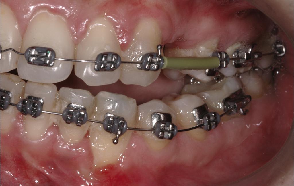 Ortho-Prostho Management of Full Mouth Rehabilitation cover