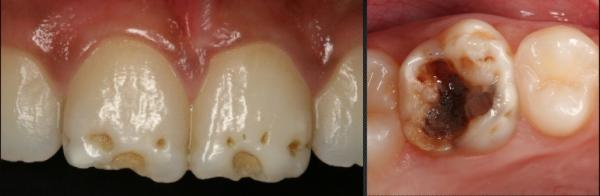 Pitted Enamel Hypoplasia- Management with Partial Composite Veneer and Posterior Composites cover