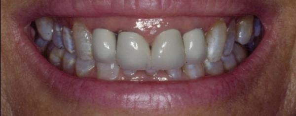 Management of Gummy Smile for Aesthetic and Functions cover