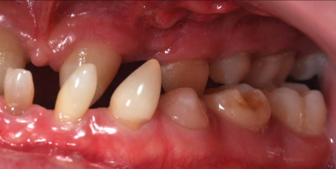 Management of Anodontia from Childhood to Adulthood cover