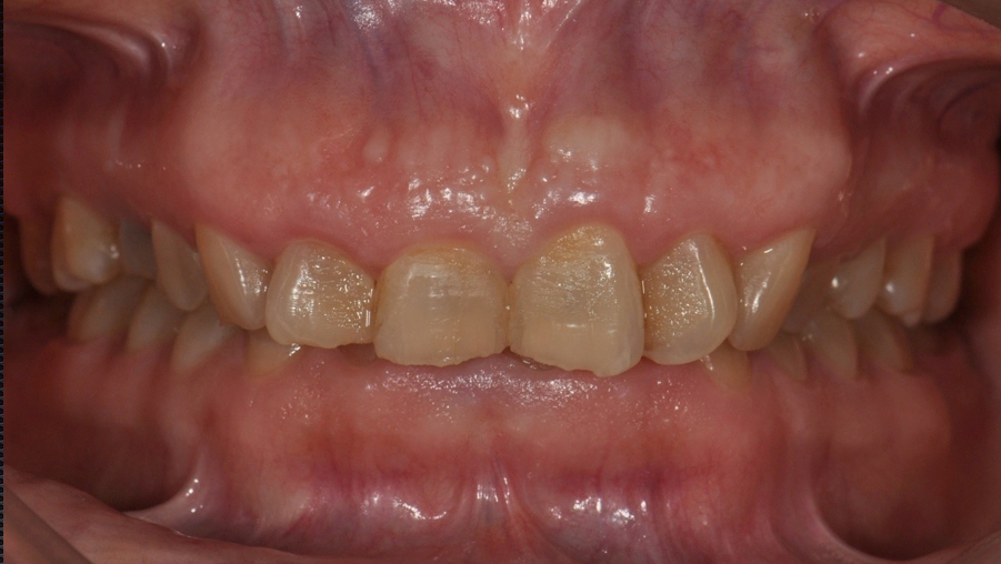 Management of Skeletal Deep Bite with Ceramic Onlays cover