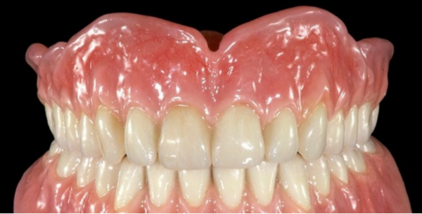 Complete Dentures cover