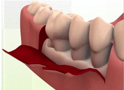 Perio Flap Procedures cover