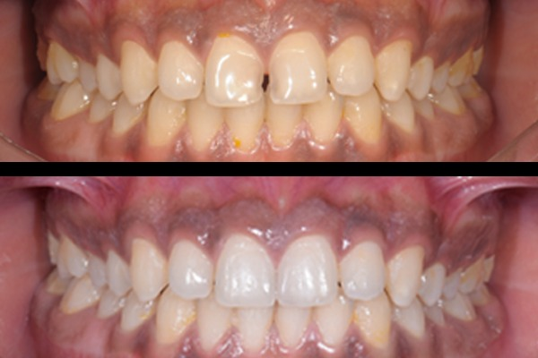 Esthetic Dentistry - 6 Months Plan cover