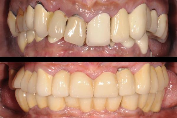 Oral Rehabilitation - 1 Year Plan cover