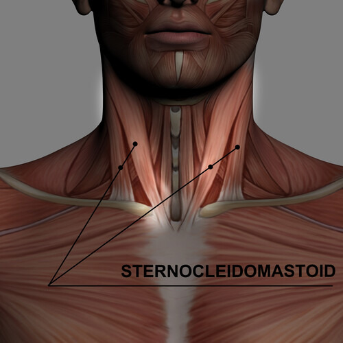 Visual of neck showing SCM sternocleidomastoid