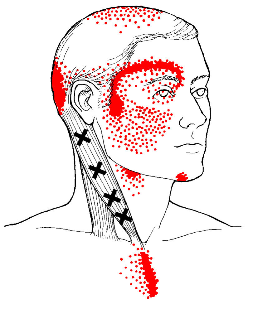 Trigger points referred pain in the head and neck from SCM